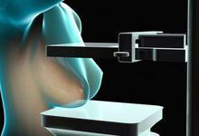 Científicos de Unicen y Conicet diseñan mamógrafo sin rayos X